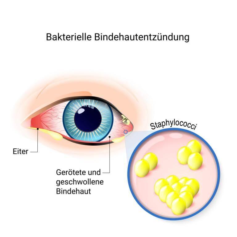 Bakterielle Bindehautentzündung