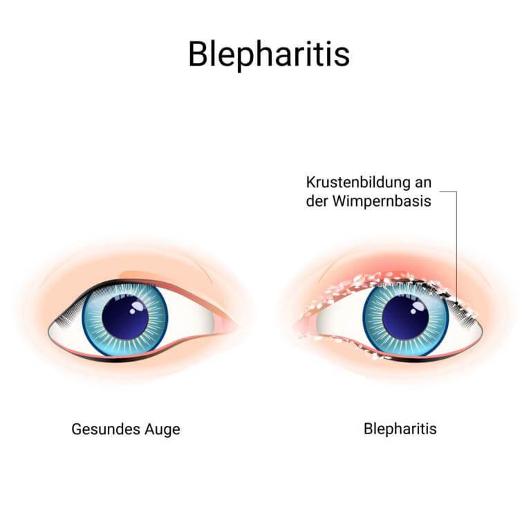 Blepharitis Infografik