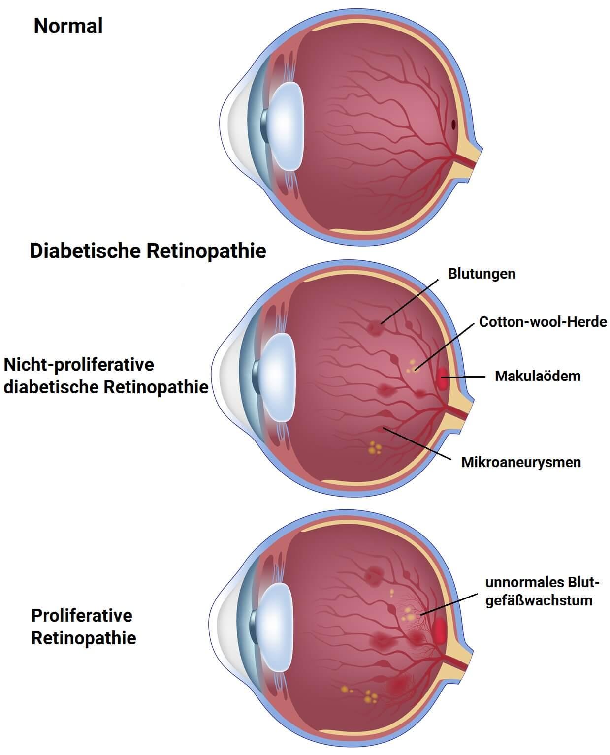 Infografik - Diabetische Retinopathie