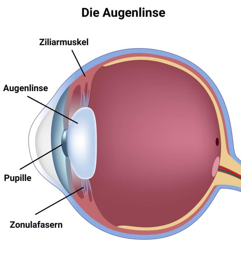 Infografik – Augenlinse