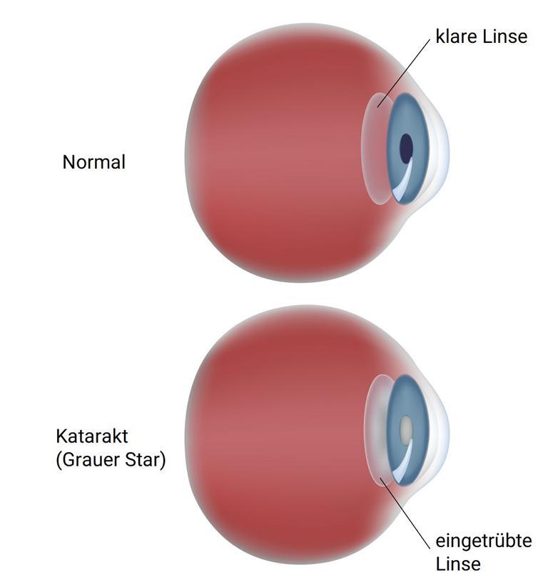 Abbildung eines Auges mit grauem Star