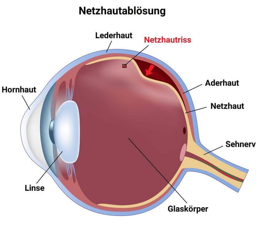 Schaubild Netzhautriss