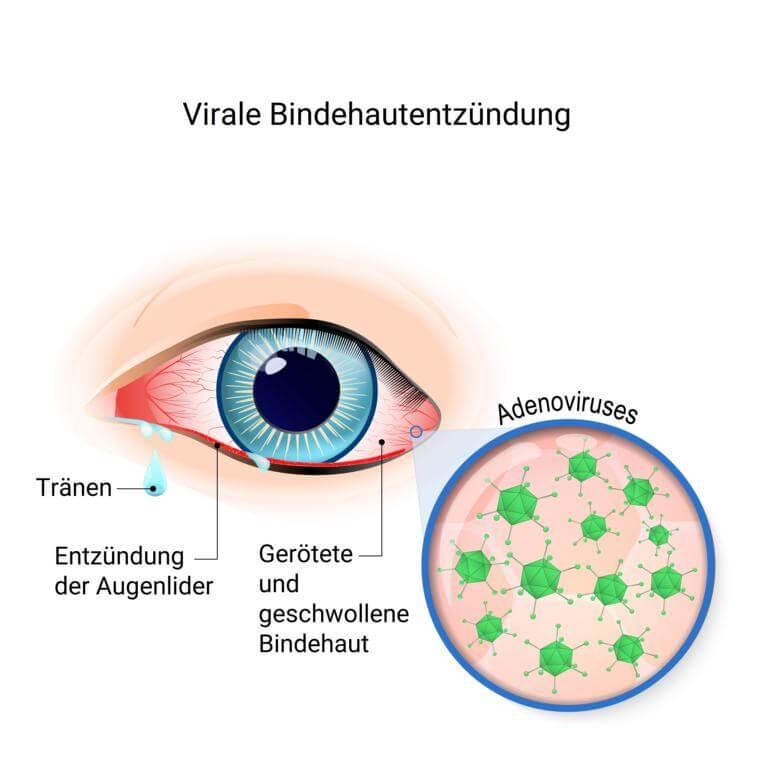 Virale Bindehautentzündung