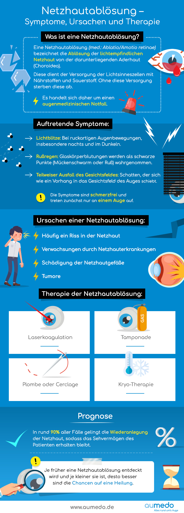 Infografik   Netzhautablösung