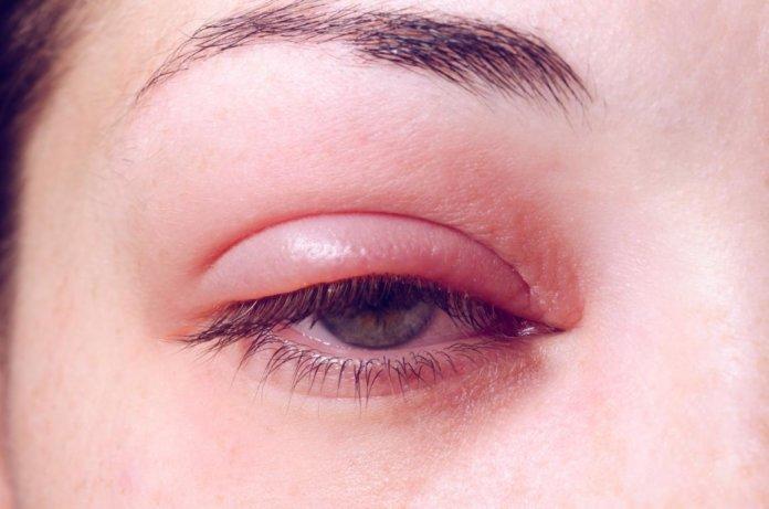 Blepharitis Symptome Ursachen Amp Therapie Aumedo De
