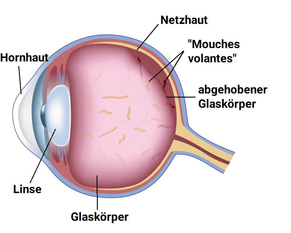 Epiretinale Gliose: Ursachen
