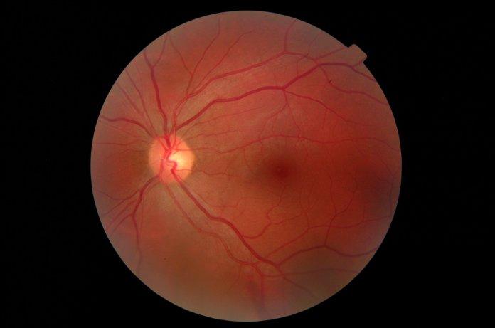 Fundusfotografie: Fotoverlaufskontrolle des Augenhintergrunds