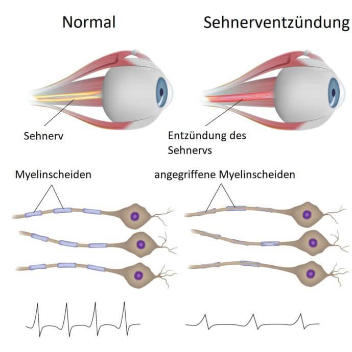 Sehnerventzündung Infografik
