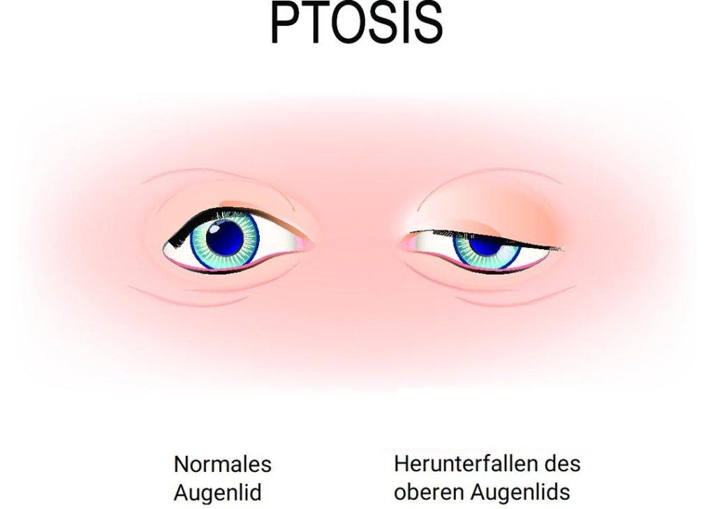 Ptosis Grafik