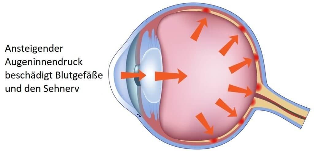 Augeninnendruck Infografik