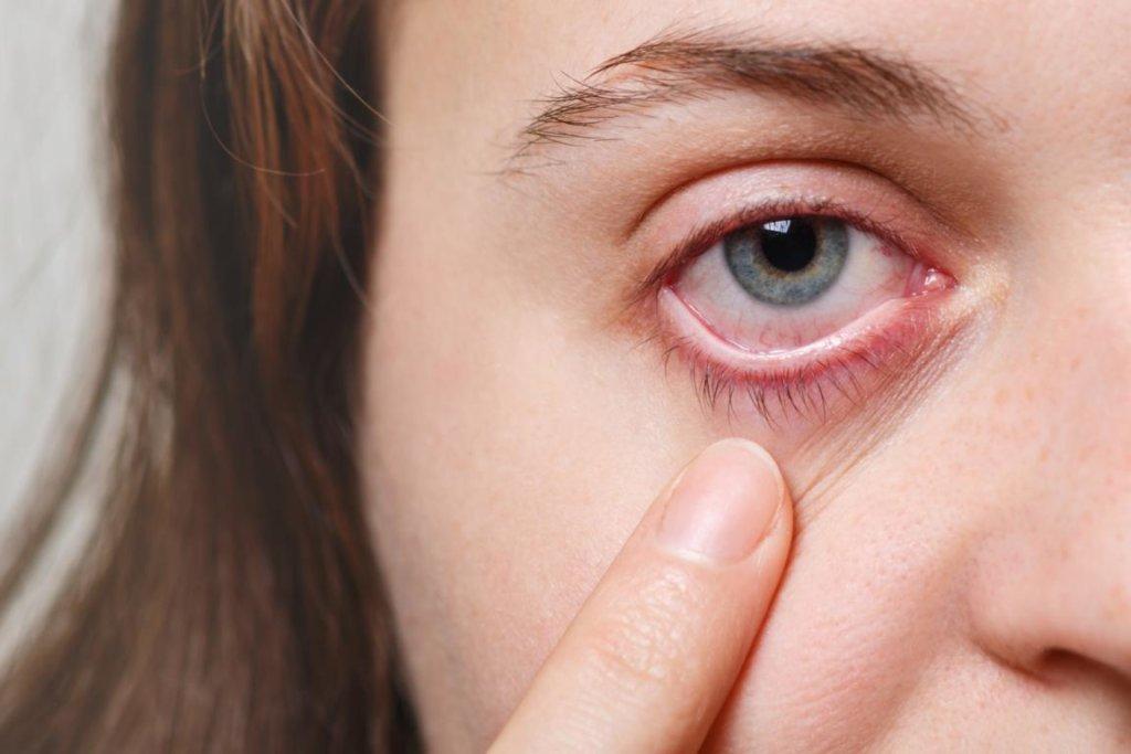 Ektropium: Symptome