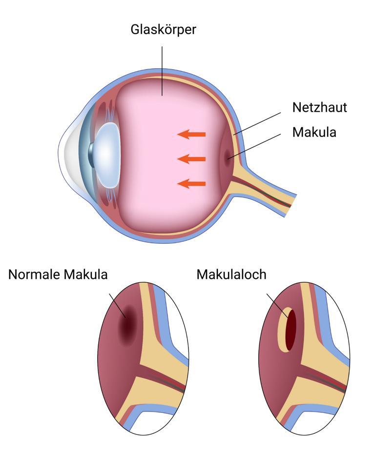 Makulaloch