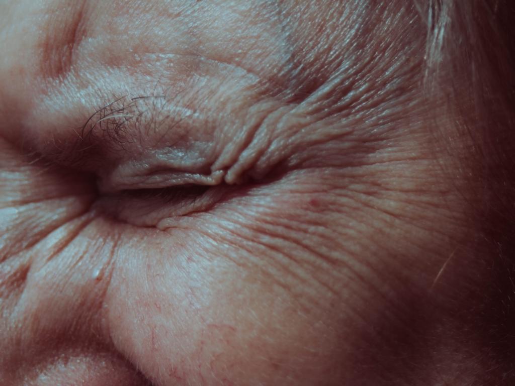 Blepharospasmus: Symptome