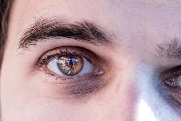 Augenringe: Formen
